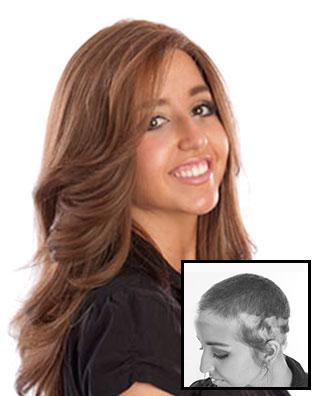 Images International Women's Hair Restoration Before and After Photo 3