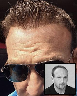 Images International Men's Hair Restoration Before and After Photo 1