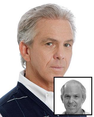 Images International Men's Hair Restoration Before and After Photo 2