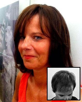 Images International Women's Hair Restoration Before and After Photo 2