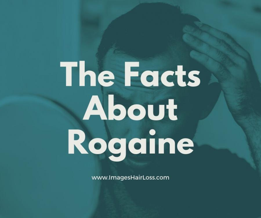 The Facts About Rogaine